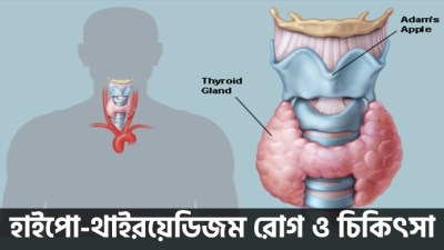 Sample Image of Hypo-Thyrodism