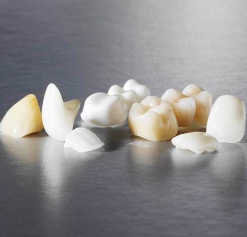 All Ceramic   Crown and Bridge   Sunrise Dental Lab. CA