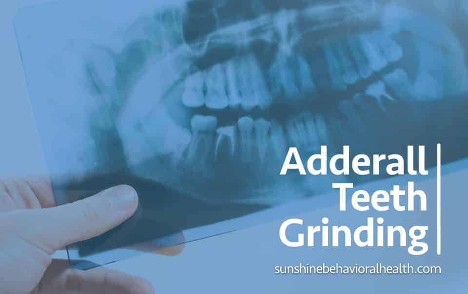 Teeth Grinding and Jaw Clenching from Adderall | Dental ...