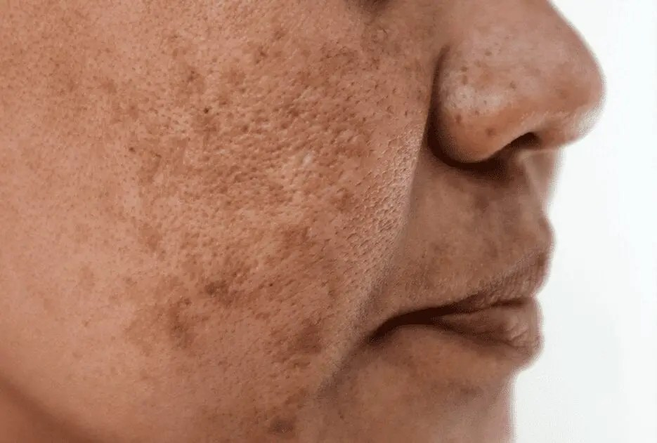 Melasma and Skin Discoloration: A Rising Epidemic