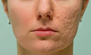 Changing your skin texture