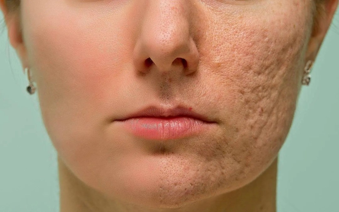 How to Improve Your Skin Texture in Just One Week