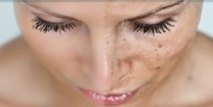 age spots and hyperpigmentation