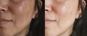 Un-Even Skin Tones Corrected with Pumpkin Power Peel