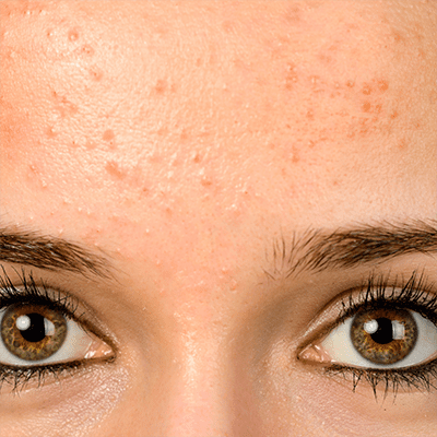 Oily or Congested Skin, What is your skin type?