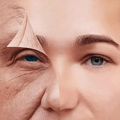 Lines and Wrinkles What is your skin type?