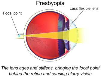 Diagram of eye with presbiopia