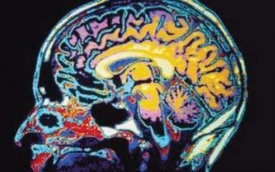 Understanding Traumatic Brain Injury