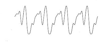 Ett försök att rita livets graf