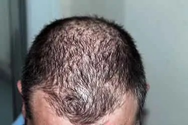 gla from borage evening primrose oil for hair loss review