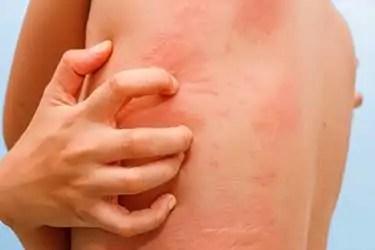Walnut Tree Allergy Symptoms