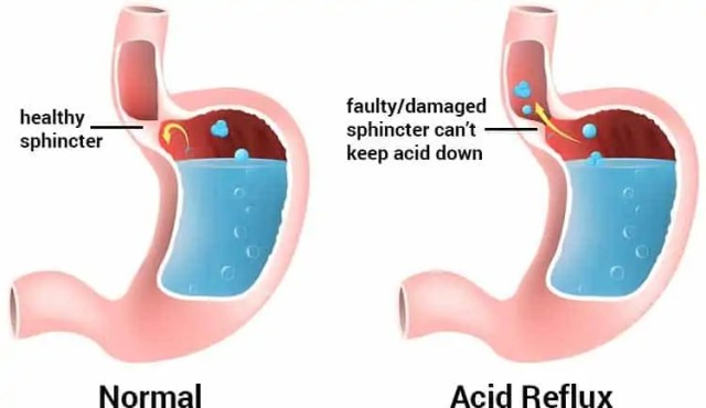 acid reflux - KOSA Acupuncture proudly presents How To Treat ACID REFLUX and Testimonials