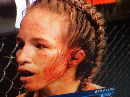Leslie bem que tentou voltar, mas luta acabou interrompida por ordem médica. Foto: Reprodução/Twitter