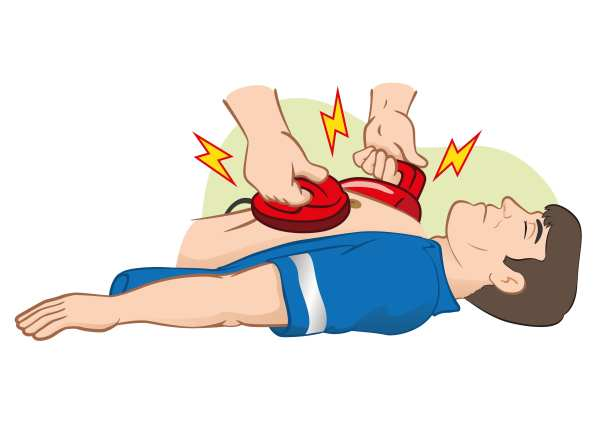 CPR Clip Art Illustration