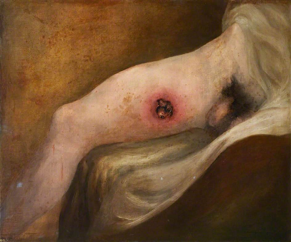 Fig. 2 – Charles Bell, 'Gunshot Wound of Thigh' (1809). Royal College of Surgeons of Edinburgh.