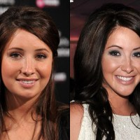 Bristol Palin Plastic Surgery Before After, Breast Implants