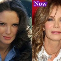 Jaclyn Smith Plastic Surgery Before After, Breast Implants