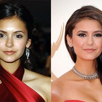 Nina Dobrev Plastic Surgery Before After, Breast Implants