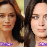 Emily Blunt Plastic Surgery Before After, Breast Implants