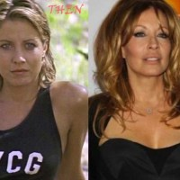 Linda Kozlowski Plastic Surgery Before After, Breast Implants