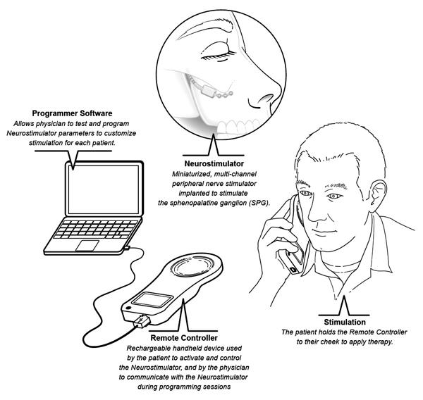 Implanted Neurostimulation Technology Provides Electronic