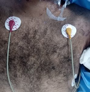 ECG Electrocardiograph Lead Placement and Measurement
