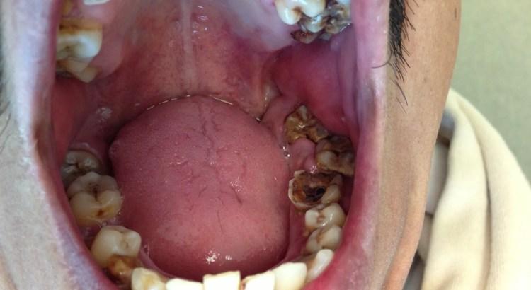 Teeth Rot