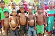सात हजार भन्दा बढी बालबालिका कुपोषणको शिकार