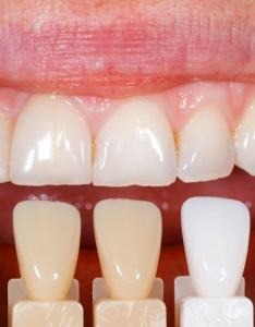 Stylised tooth shade chart also ultimate guide on teeth whitening sutton place dental associates rh suttonpda
