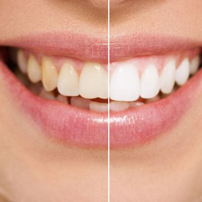 Teeth Whitening Suwanee