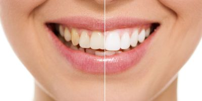 Teeth Whitening Suwanee