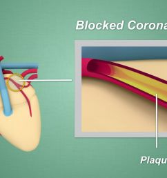 plaque can also cause blood clots which may lead to a heart attack  [ 1280 x 720 Pixel ]