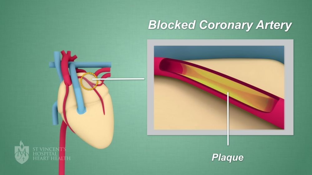 medium resolution of plaque can also cause blood clots which may lead to a heart attack