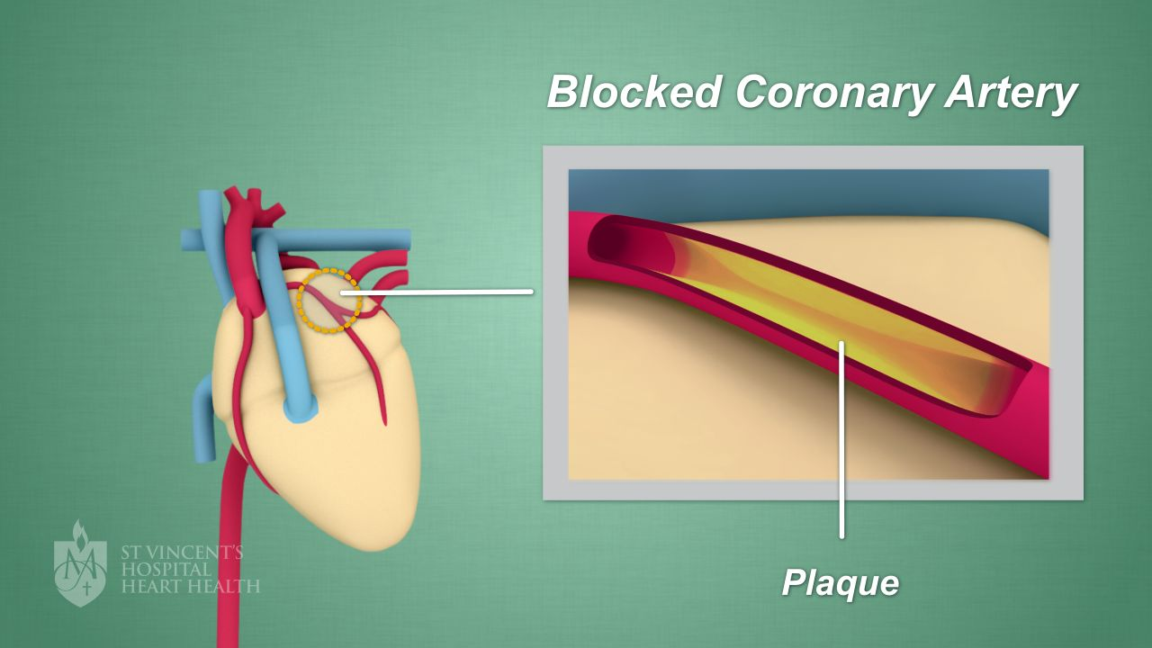 hight resolution of plaque can also cause blood clots which may lead to a heart attack