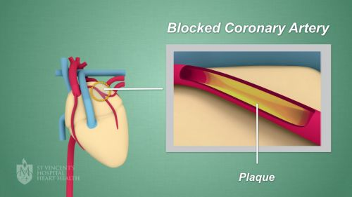 small resolution of plaque can also cause blood clots which may lead to a heart attack