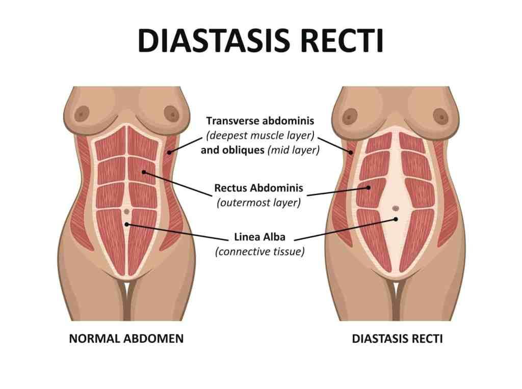 Identifying Diastasis Recti and how to correct it