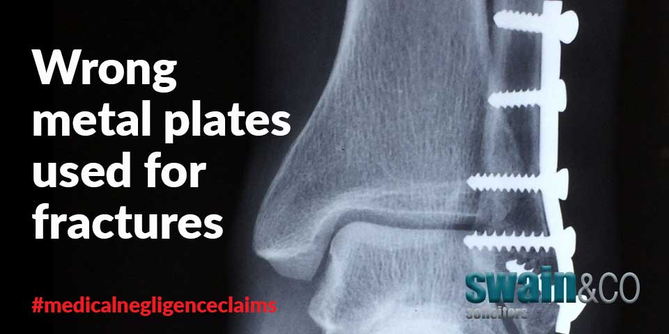 Wrong metal plates used for fractures