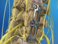 Anterior Cervical Corpectomy (Bone Graft)