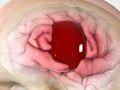 Chronic Subdural Hematoma (Hemorrhage)