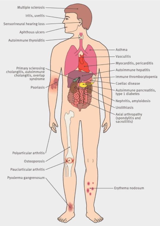 extraintestinal manifestations of ibd