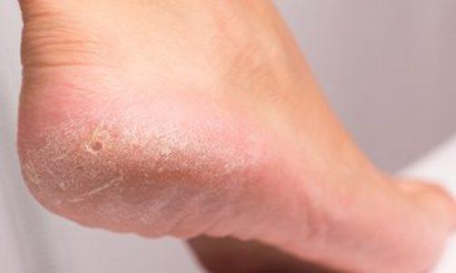 Callus Foot