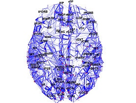 Scientists Map Brain's Wiring Diagram SWI Swissinfo Ch