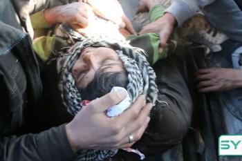 طفل أُصيب بقصف الروسي جنوب حلب