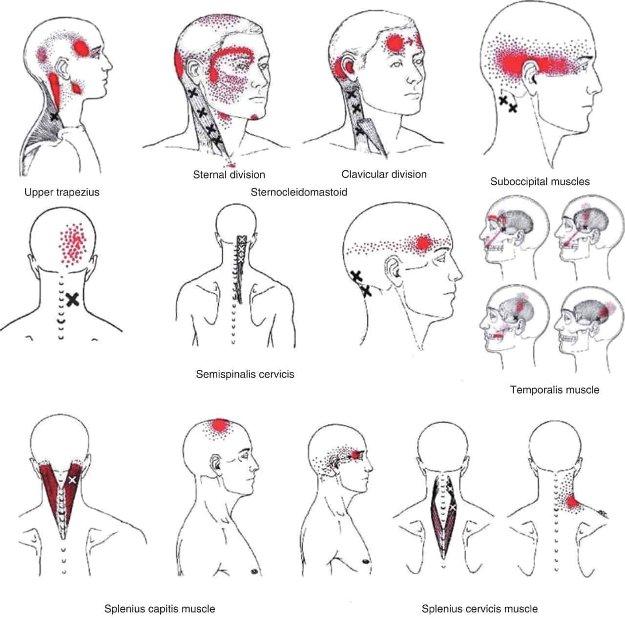 Relaxation Neck Pressure Points