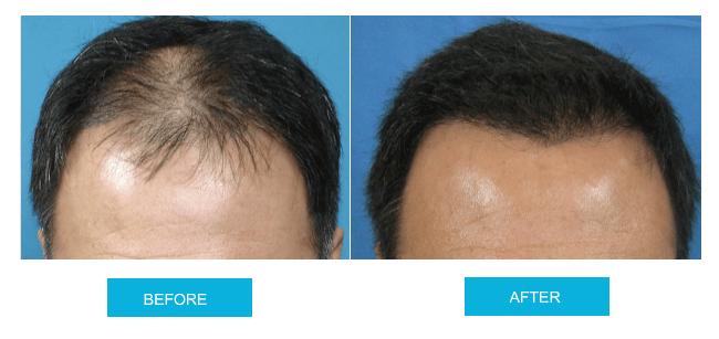 2000 Grafts Hair Transplant এর ছবির ফলাফল