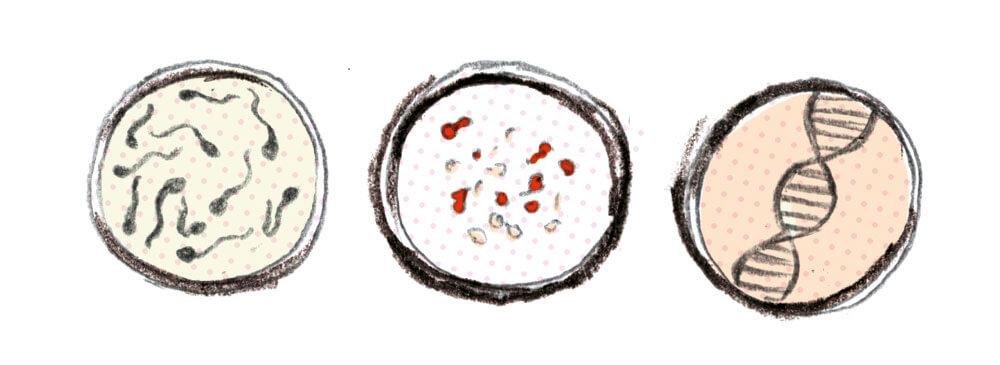 medical illustration.specimens.sylviastølan