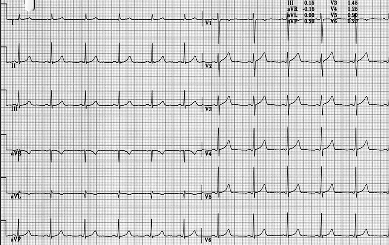 long-QT normal baseline ECG