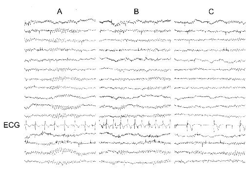 EEG of nocturnal sleep syncope
