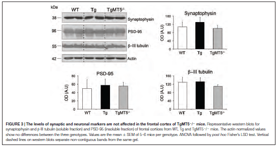 MT5-MMP Promotes Alzheimer's Pathogenesis in the Frontal