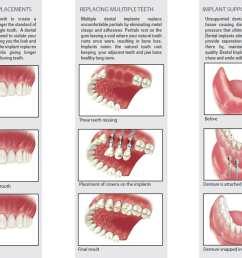 tooth bone diagram [ 1957 x 1497 Pixel ]